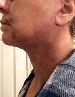 Lower Facelift Recovery Photos (36)