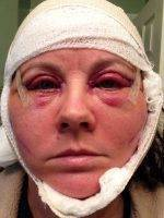 Lower Facelift Recovery Photos (38)