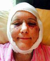 Lower Facelift Recovery Photos (8)