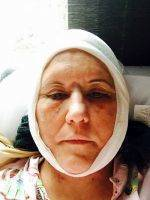 Lower Facelift Recovery Photos (9)