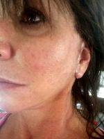 Lower Facelift Scar Pictures (6)