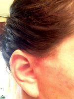 Lower Facelift Scars (28)