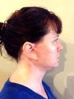 Lower Facelift Scars (32)