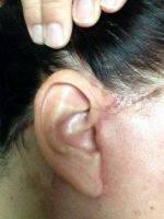 Lower Facelift Scars (37)