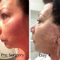 Lower Facelift Scars Day 4