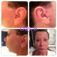 Lower Facelift Scars Day 6