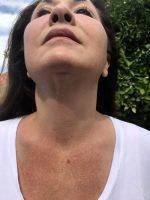 Lower Facelift Scars Under Chin (1)