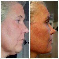 Lower Facelift Surgery Before And After Photo