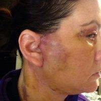 Lower Rhytidectomy Recovery Images (2)