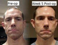 Male Facelift Preop And Post Op