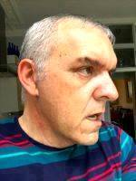 Male Facelift Scars Photos (7)