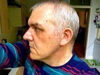 Male Facelift Scars Photos (8)