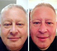Male Microcurrent Face Lift Before And After