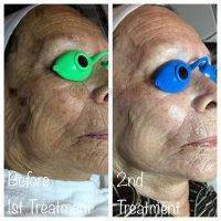 Microcurrent Face Lift After 2 Treatment