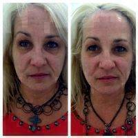 Microcurrent Face Lift Before And After Pictures (1)