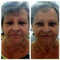 Microcurrent Face Lift Before And After Pictures (4)