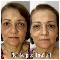 Microcurrent Face Lift Before And After Pictures (7)
