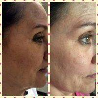 Microcurrent Face Lift Before And After Pictures (8)