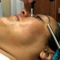 Microcurrent Facelift At Home