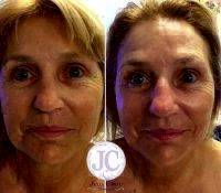 Microcurrent Facial Before After (5)