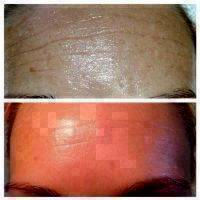Microcurrent Facial Before After (6)