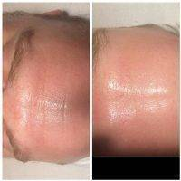 Microcurrent Facial Before After (9)