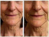 Microcurrent Facial Before And After Photos (2)