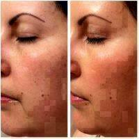 Microcurrent Facial Before And After Photos (4)