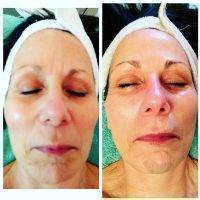 Microcurrent Facial Before And After Photos (7)