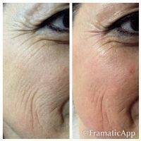 Microcurrent Facial Before And After Pictures (1)