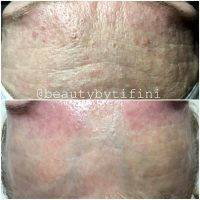 Microcurrent Facial Before And After Pictures (2)