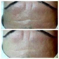 Microcurrent Facial Before And After Pictures (3)