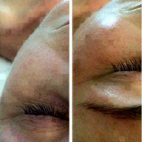 Microcurrent Facial Before And After Pictures (7)