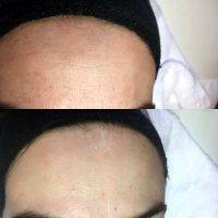 Microcurrent Facial Therapy Before And After (2)