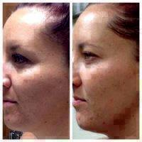 Microcurrent Facial Therapy Before And After (3)