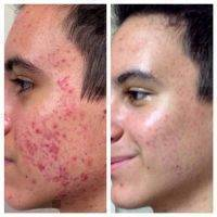 Microcurrent Facial Therapy Before And After (4)