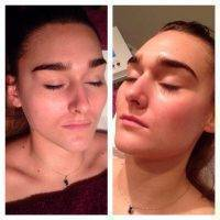 Microcurrent Facial Therapy Before And After (5)