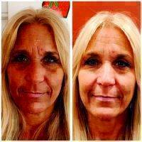 Microcurrent Facial Therapy Before And After Photo