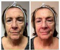 Microcurrent Facial Toning Before And After (2)