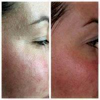Microcurrent Facial Toning Before And After (3)