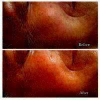 Microcurrent Facial Toning Before And After (4)