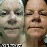 Microcurrent Facial Toning Before And After (5)