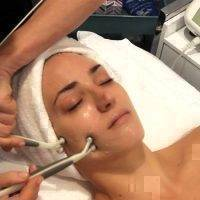 Microcurrent Facial Toning Before And After (6)