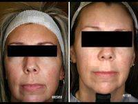 Microcurrent Facial Treatment Before And After (2)