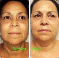 Microcurrent Facial Treatment Before And After (4)