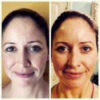 Microcurrent Facial Treatment Before And After (5)
