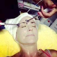 Microcurrent Facial Treatment Photos