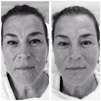 Microcurrent For Face Lift Photos (6)
