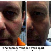 Microcurrent For Face Lift Photos (7)