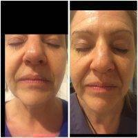 Microcurrent Galvanic Face Lift Before After Photos (1)